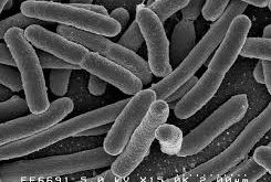 Influence of Bacteria on Autism